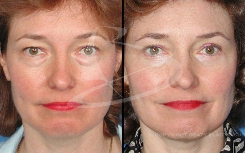 IPL Atlanta GA | Laser Skin Rejuvenation Alpharetta